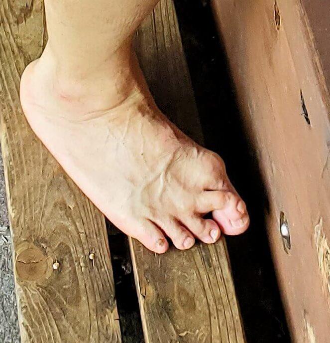 大分県別府にある鉄輪温泉街で足湯に入るオジサンの折れ曲がった足の指